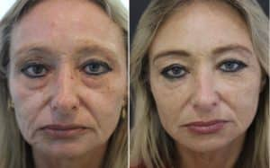 Read more about the article How much dermal filler do I need?